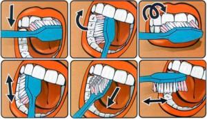 Большинство людей неправильно чистит зубы
